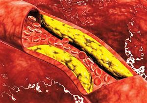 دون الحاجة للأدوية.. 8 طرق طبيعية لخفض نسبة الكوليسترول بالدم (صور)