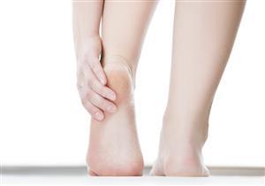 تعانين منها في فصل الشتاء؟.. 7 طرق طبيعية للتخلص من تشققات القدمين
