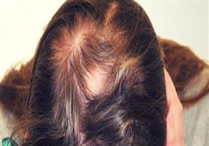 باحثون: القهوة تساعد في محاربة تساقط الشعر والقضاء على الثعلبة