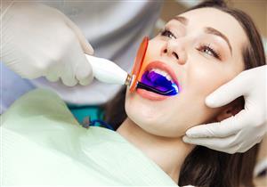 قبل الخضوع لها.. إليك كل ما تريد معرفته عن عملية تبييض الأسنان