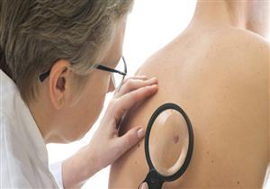منها تغير لون الجلد.. 9 أعراض شائعة تنذر بالإصابة بالسرطان