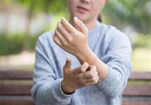 أخطرهم الصدفية.. 4 أمراض جلدية يسببها جفاف البشرة في فصل الشتاء