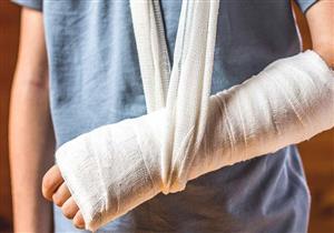 العلاج الطبيعي ضروري بعد كسور العظام.. هذه أضرار إهماله
