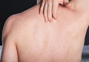 هل ترتبط حكة الجسم بعدم النظافة؟.. استشاري أمراض جلدية يقدم الأسباب وطرق العلاج
