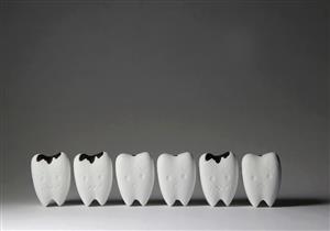 تسوس الأسنان.. الأسباب والعلاج وطرق الوقاية