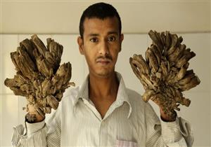 متلازمة الجثة والرجل الشجرة.. تعرف على أكثر الأمراض الغريبة والنادرة