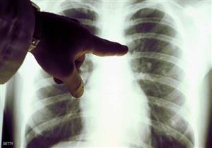 3 علامات تكشف إصابتك بسرطان الرئة