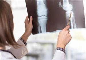 دراسة: سكان المدن الملوثة أكثر عرضة للإصابة بهشاشة العظام