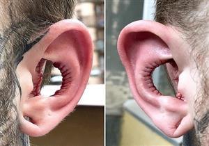 أغرب جراحة تجميل بالأذن.. كيف سيسمع صاحبها؟