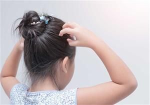 هل تعاني من قمل الشعر؟.. إليك الأسباب وطرق العلاج