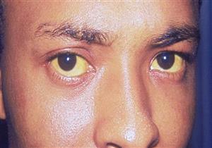 احترس..اصفرار الوجه يشير لمشاكل صحية خطيرة