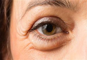 طرق طبيعية تخلصك من تورم العين بعد البكاء.. منها الشاي