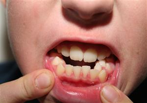 مضاعفاتها قد تصل للأورام.. أسباب نمو الأسنان الزائدة وطرق التعامل معها