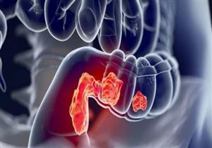 علامات تشير للإصابة بسرطان القولون.. إليك طرق الوقاية