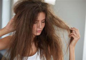 وصفات طبيعية لعلاج الشعر الجاف نهائيًا