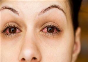 """تعاني من """"العيون الدامية""""؟.. إليك الأسباب والأعراض وروشتة العلاج"""