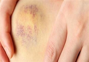 3 أسباب لظهور الكدمات المفاجئة.. إليك طرق علاجها