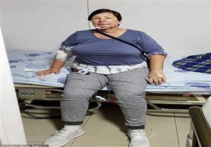 أمريكية تصاب بمرض نادر يأكل لحمها  بعد إجراء شفط الدهون.. إليك التفاصيل