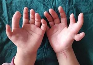 بالصور ولدت بـ14 إصبع.. كيف تعامل الأطباء معها؟