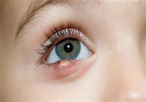 أعراض متعددة لخراج العين.. متى يحتاج للتدخل الجراحي؟