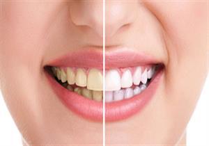 أطعمة ومشروبات تغير لون أسنانك.. 3 نصائح للحفاظ على بياضها