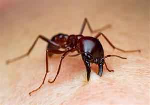 قرصة النمل تهددك بمضاعفات خطيرة.. إليك أعراضها وطرق علاجها
