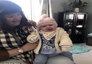 مرض نادر.. شابة بريطانية تنجب عبر التلقيح الصناعي قبل استئصال رحمها