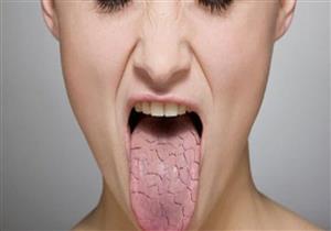 تعاني من جفاف الفم عند الاستيقاظ؟.. إليك الأسباب وطرق الوقاية