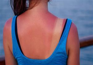 مخاطر متعددة لحروق الشمس في المصيف.. إليك طرق الوقاية والعلاج