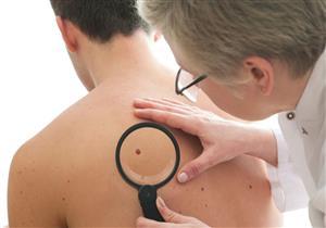 هل الزوائد الجلدية تشير إلى مرض خطير؟.. إليك طرق علاجها