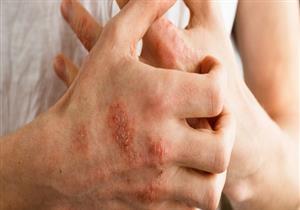 إحداها يهدد كبار السن.. 6 أنواع لمرض الأكزيما (صور)