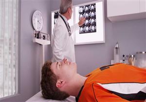 دراسة: إصابات الدماغ الخفيفة يمكن أن تفقدك حاسة الشم