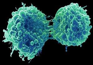 اكتشاف فيروس جديد يمكنه القضاء على الخلايا السرطانية