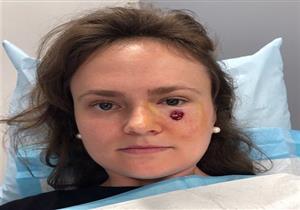 """""""حباية"""" أسفل العين تكشف إصابة فتاة بسرطان جلد"""