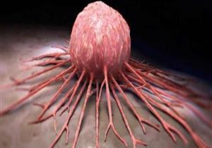 ابتكار طريقة جديدة للوقاية من الوفاة بسبب السرطان