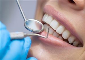 هل إزالة الجير يضعف الأسنان؟ إليك الحقيقة