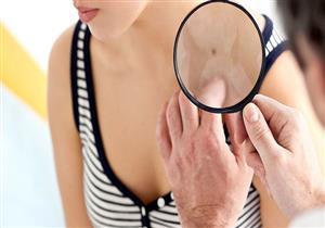 قد يؤدي للوفاة.. إليك كيفية اكتشاف الإصابة بسرطان الجلد
