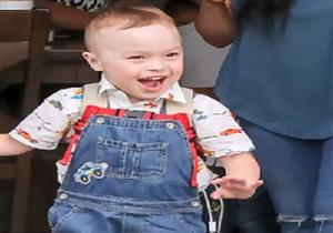 وزنه أقل من نصف كيلو وممنوع من الشمس.. مرض نادر يهدد حياة طفل