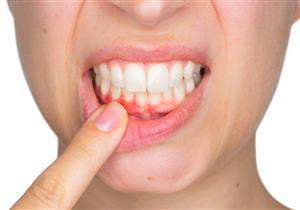 تدهور صحة الأسنان ينذرك بأمراض القلب والدماغ