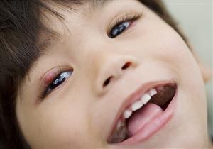 4 إجراءات للوقاية من الكيس الدهني بالعين.. احرص عليها (صور)
