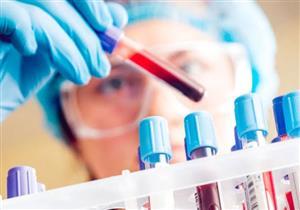 تحليل دم جديد.. يكشف عن 20 نوعًا من السرطان