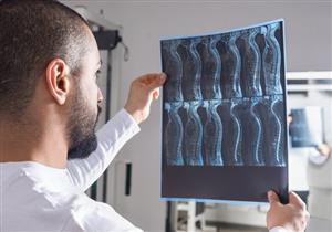 النقائل العظمية.. هكذا تصل الخلايا السرطانية إلى العظام