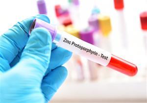 فرط الفوسفات بالدم يهدد مرضى الكلى بالوفاة.. إليك أسبابه وطرق علاجه