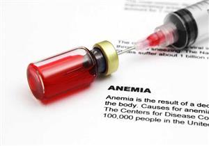 فقر الدم الناجم عن نقص الحديد.. هذا ما يحدث بجسمك عند الإصابة به