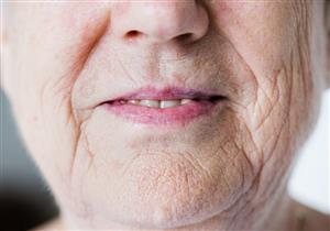 3 أنواع مختلفة لتجاعيد الفم.. هكذا يمكن التخلص منها