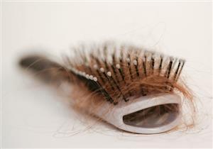 لماذا يتعرض بعض المتعافين من كورونا لتساقط الشعر الكربي؟