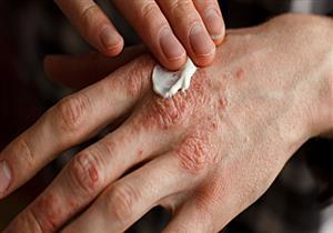 كيف يؤثر التهاب الجلد التأتبي على الصحة العقلية والنفسية؟