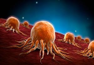دراسة تكشف عن الأطعمة المفيدة لإبطاء نمو السرطان.. أبرزهم الثوم والموز