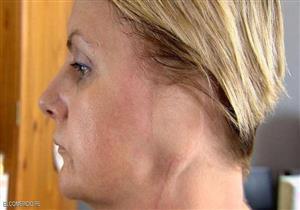 سيدة بريطانية تفقد أذنها اليسرى بسبب حمامات الشمس