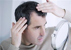 تعاني من فراغات فروة الرأس؟.. 8 أعشاب طبيعية تساعد على نمو الشعر